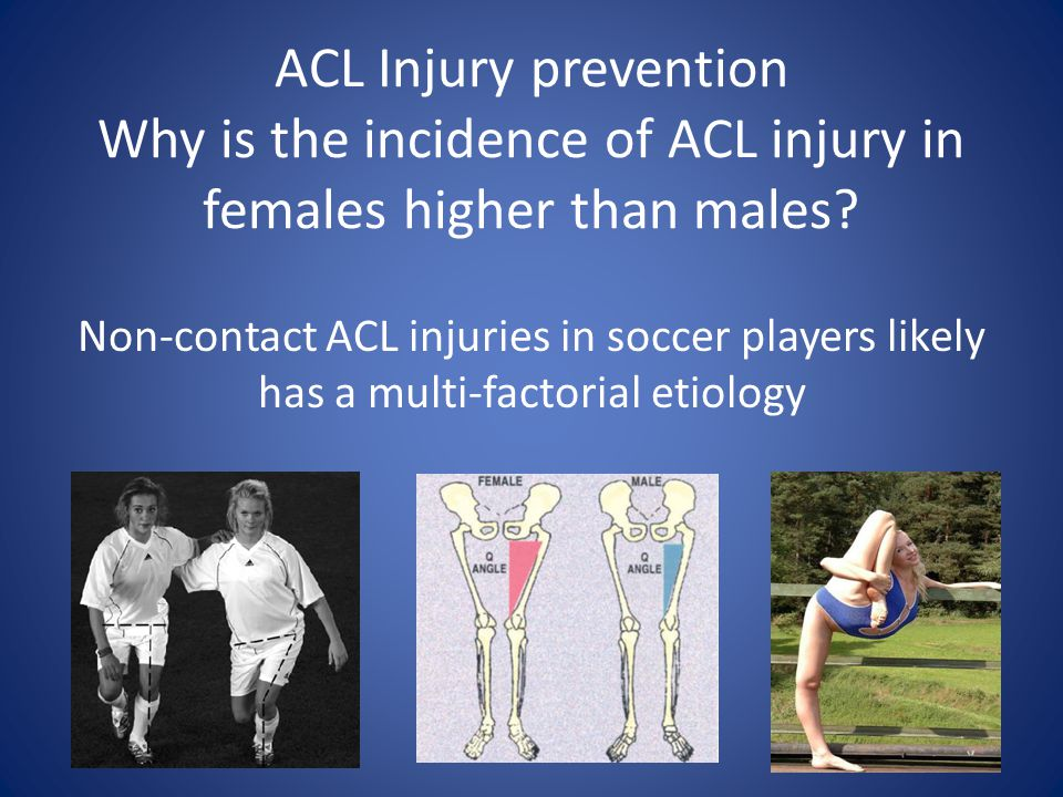 ACL Injury prevention Why is the incidence of ACL injury in females higher than males