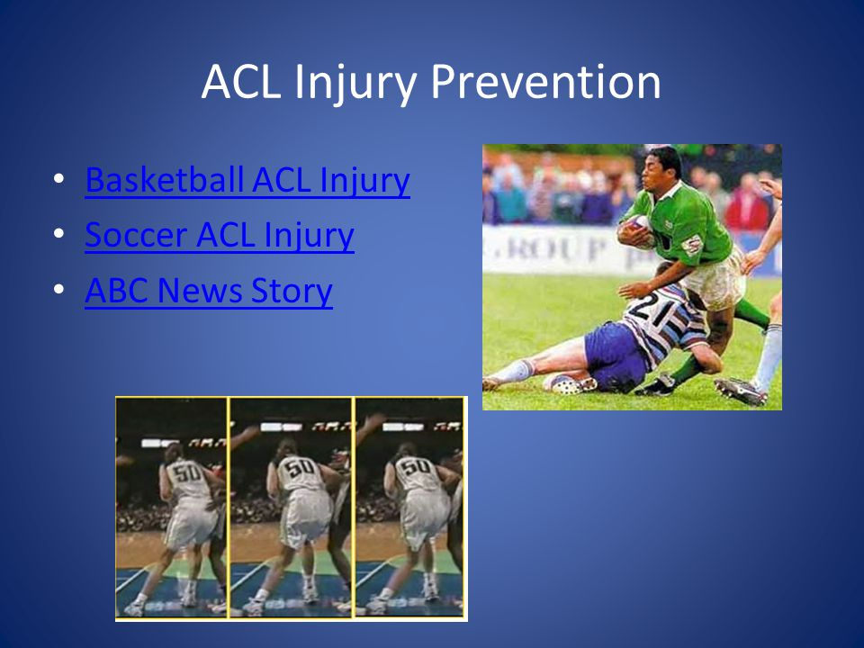 ACL Injury Prevention Basketball ACL Injury Soccer ACL Injury