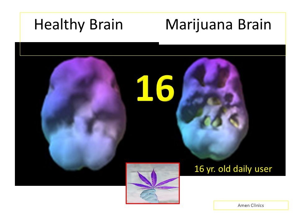 Healthy Brain Marijuana Brain