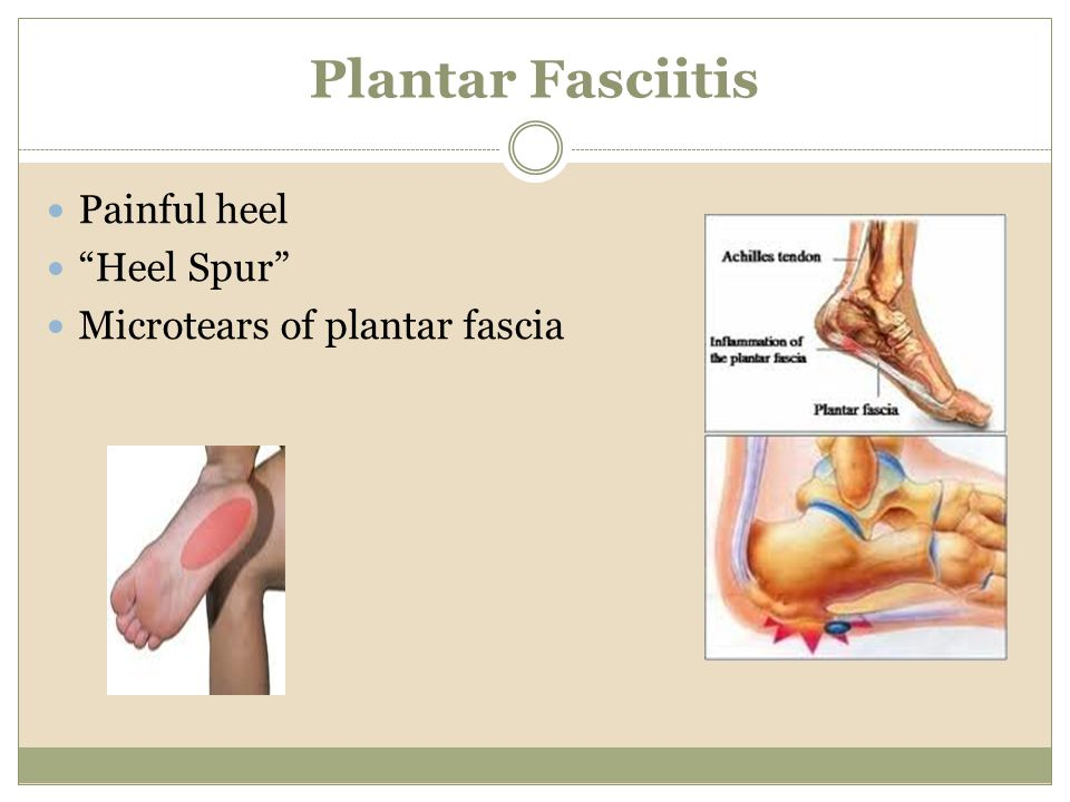 Plantar Fasciitis Painful heel Heel Spur