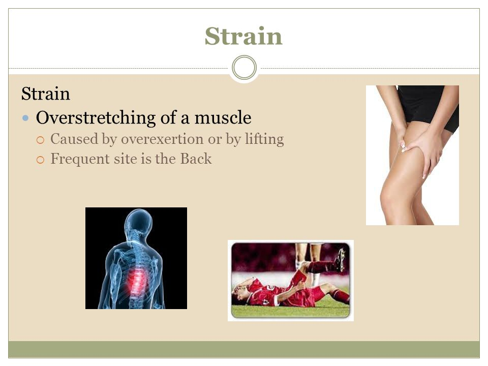 Strain Strain Overstretching of a muscle
