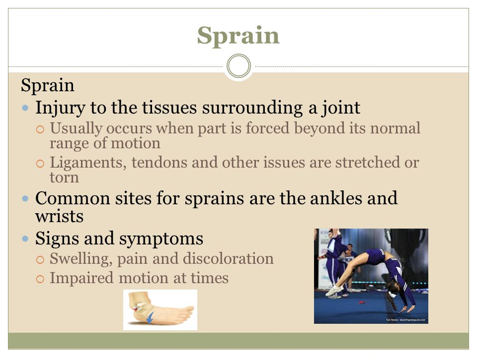 Sprain Sprain Injury to the tissues surrounding a joint