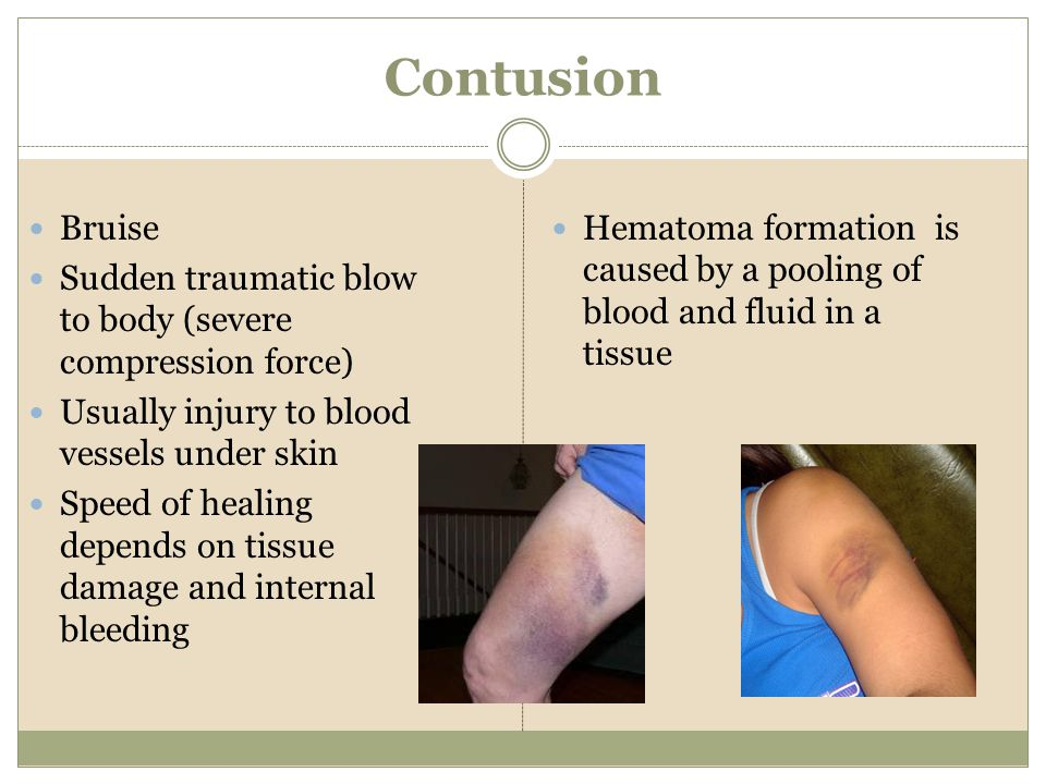 Contusion Bruise. Sudden traumatic blow to body (severe compression force) Usually injury to blood vessels under skin.