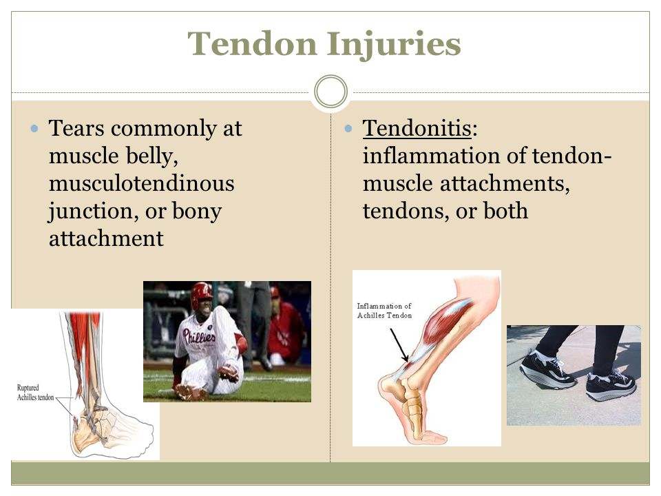 Tendon Injuries Tears commonly at muscle belly, musculotendinous junction, or bony attachment.