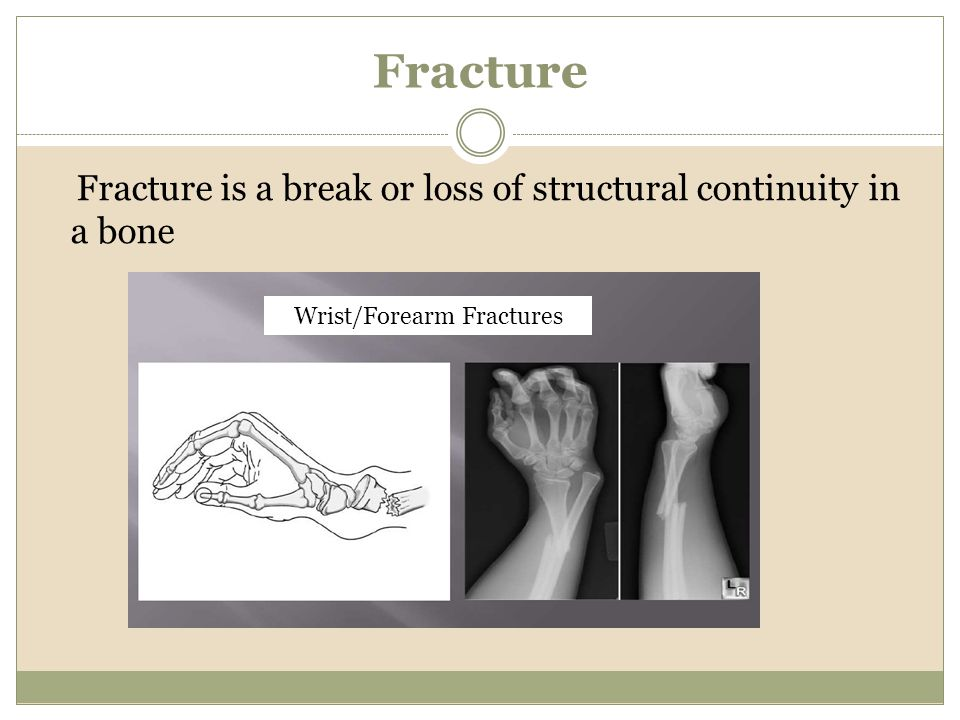 Wrist/Forearm Fractures