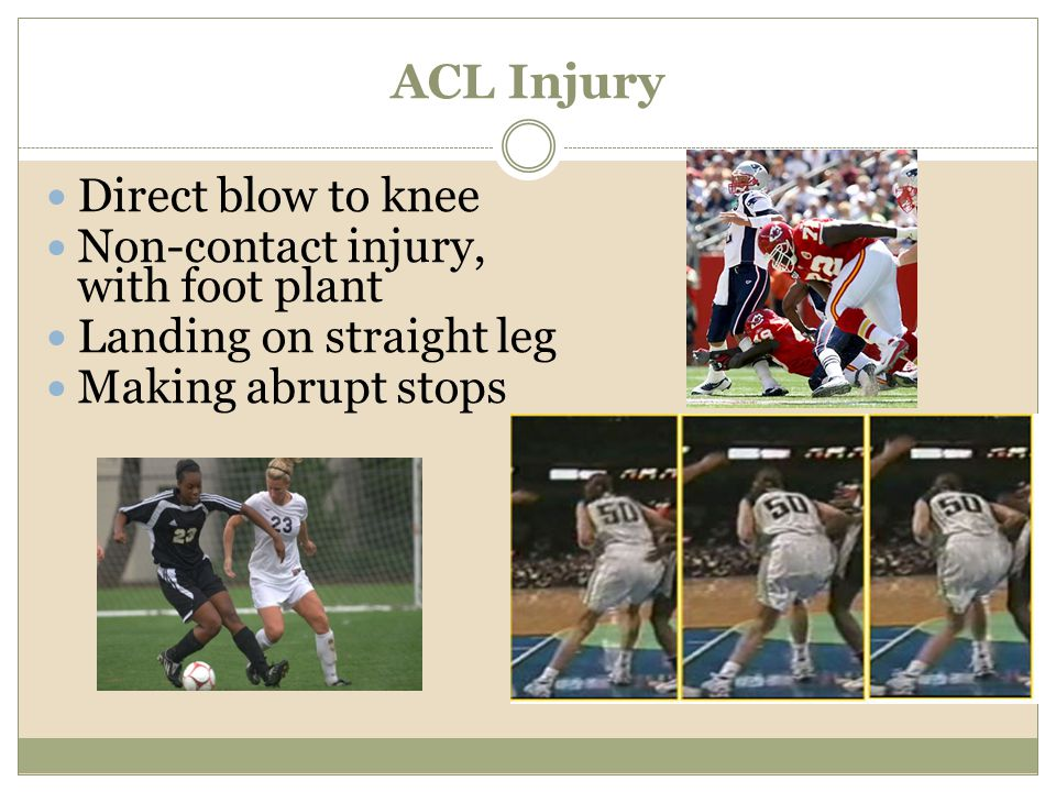 ACL Injury Direct blow to knee Non-contact injury, with foot plant