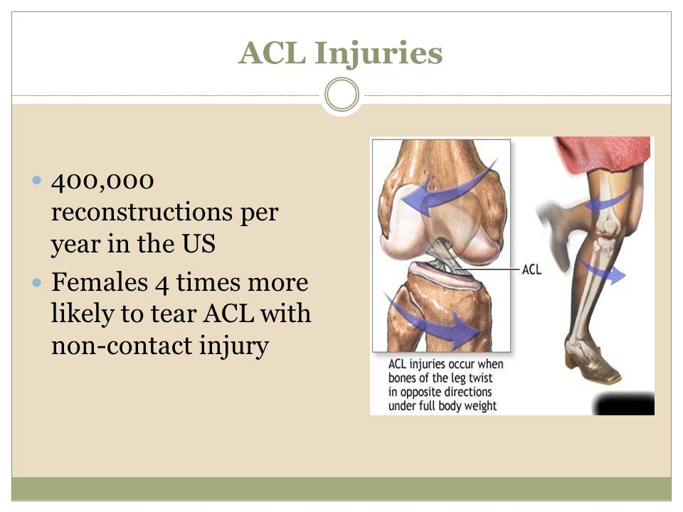ACL Injuries 400,000 reconstructions per year in the US