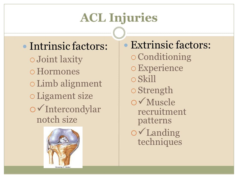 ACL Injuries Intrinsic factors: Intercondylar notch size