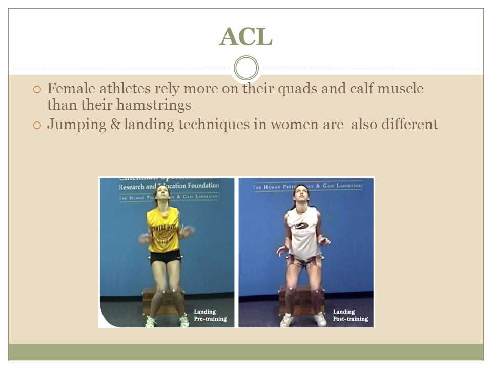 ACL Female athletes rely more on their quads and calf muscle than their hamstrings.