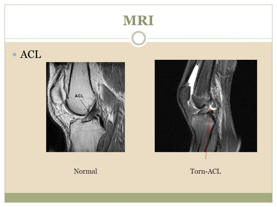 MRI ACL Normal Torn-ACL