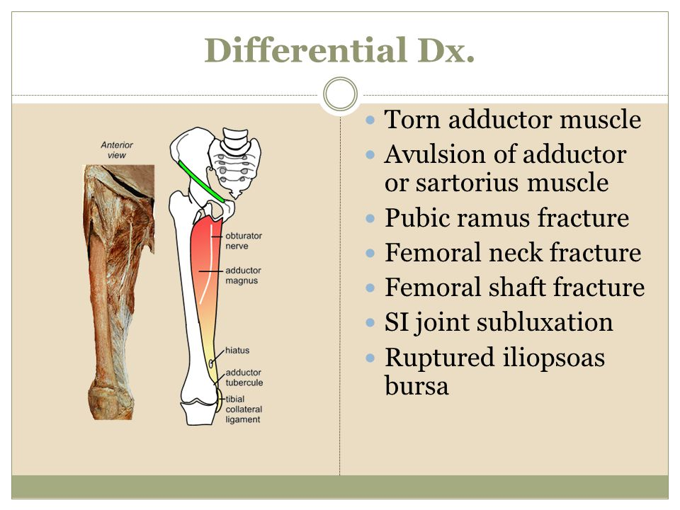 Differential Dx. Torn adductor muscle