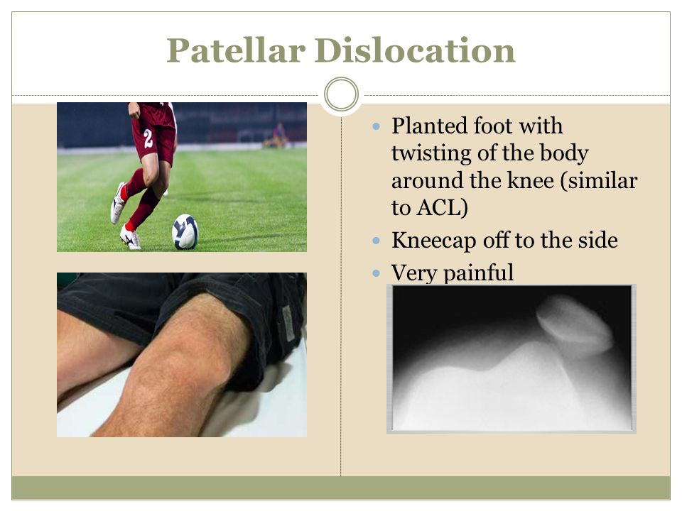 Patellar Dislocation Planted foot with twisting of the body around the knee (similar to ACL) Kneecap off to the side.