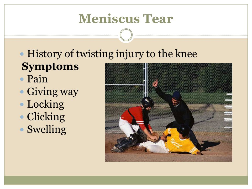 Meniscus Tear History of twisting injury to the knee Pain Giving way