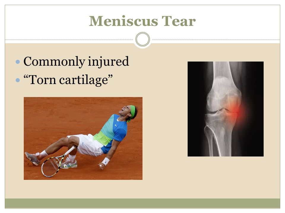 Meniscus Tear Commonly injured Torn cartilage