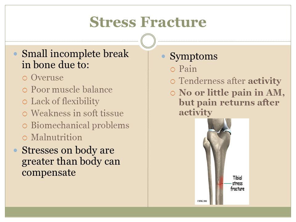 Stress Fracture Small incomplete break in bone due to: Symptoms