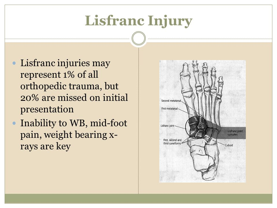 Lisfranc Injury Lisfranc injuries may represent 1% of all orthopedic trauma, but 20% are missed on initial presentation.