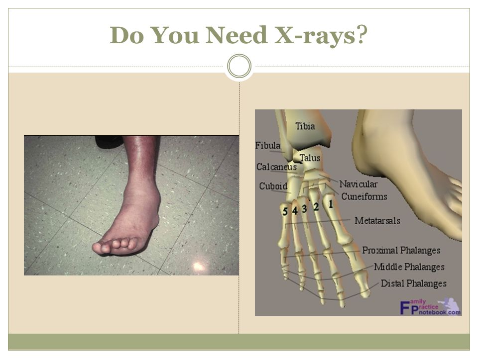 Do You Need X-rays