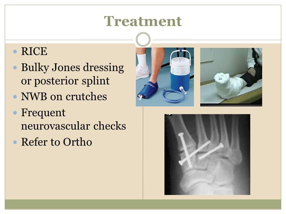 Treatment RICE Bulky Jones dressing or posterior splint