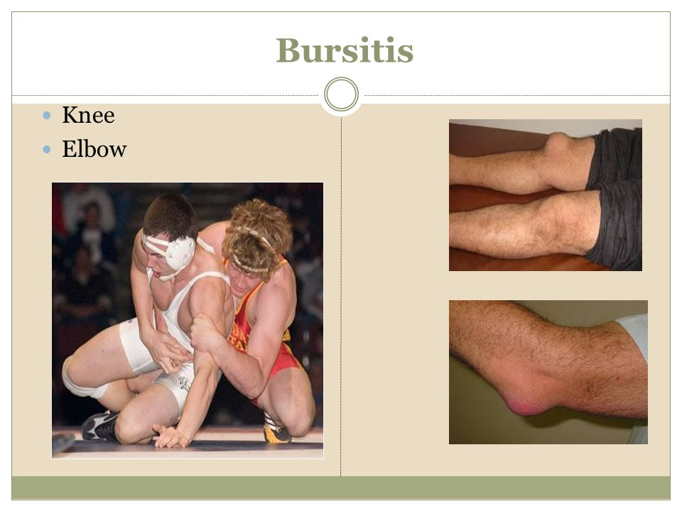 Bursitis Knee Elbow