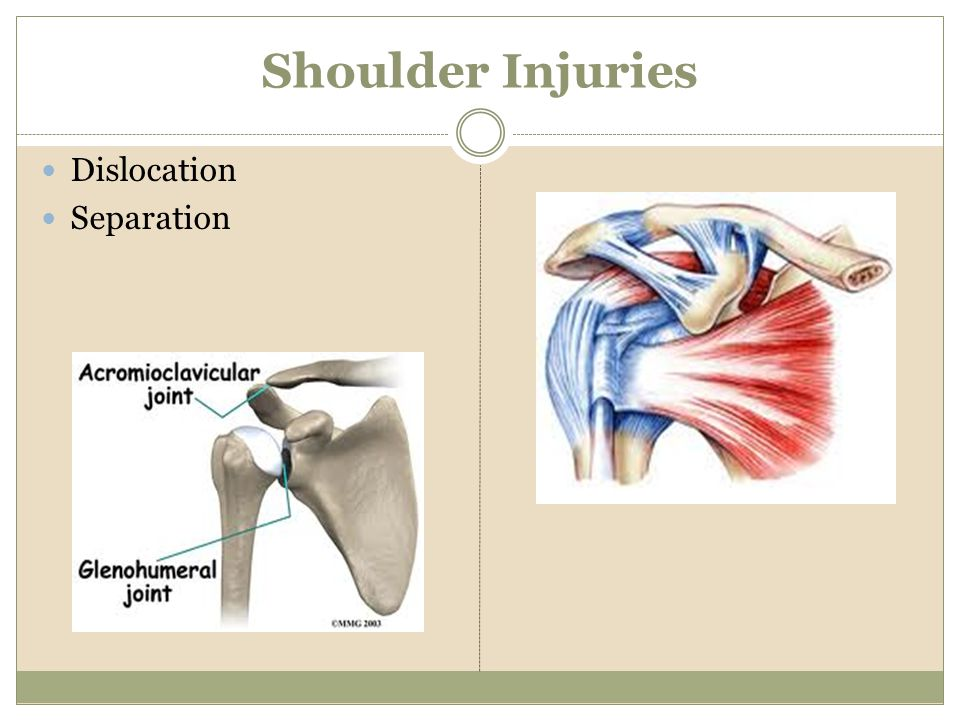 Shoulder Injuries Dislocation Separation
