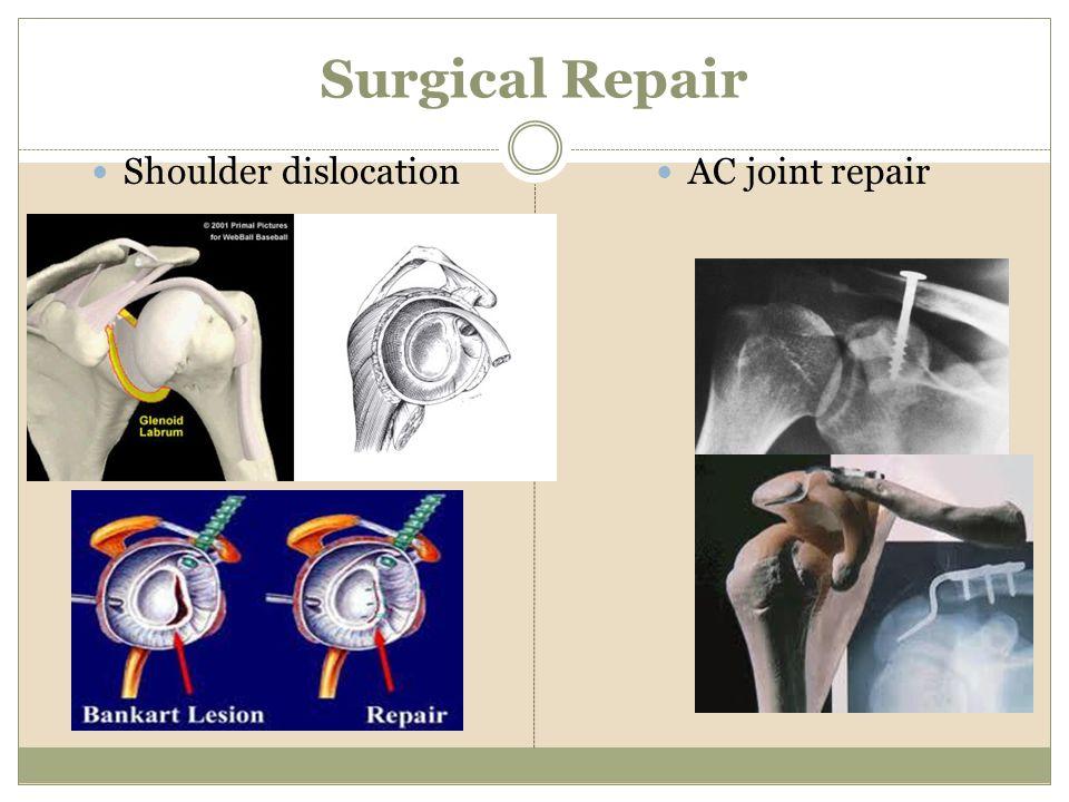 Surgical Repair Shoulder dislocation AC joint repair