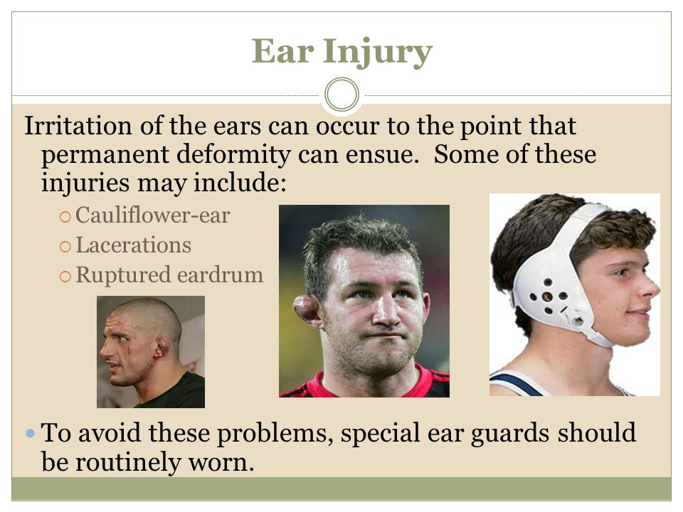 Ear Injury Irritation of the ears can occur to the point that permanent deformity can ensue. Some of these injuries may include:
