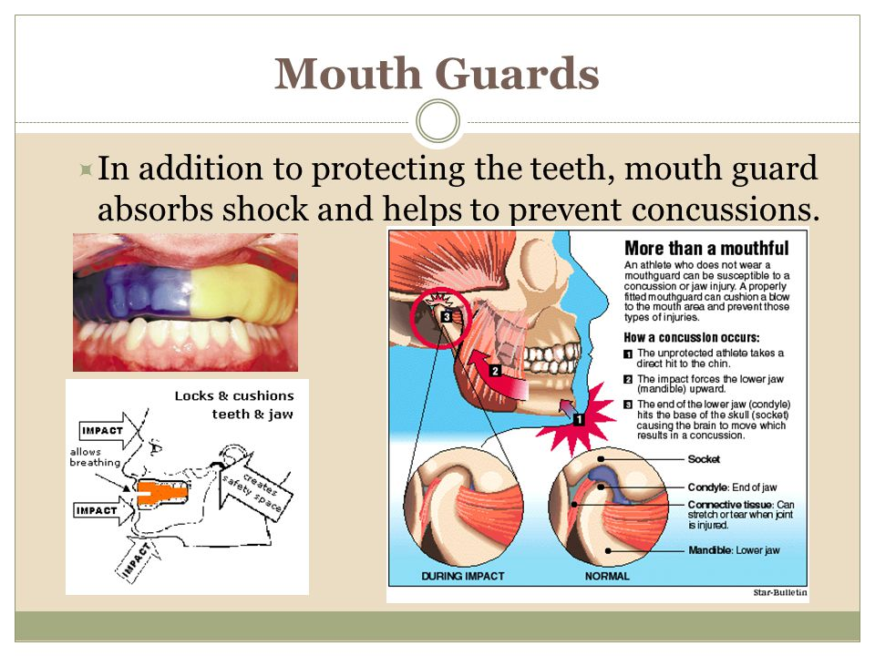 Mouth Guards In addition to protecting the teeth, mouth guard absorbs shock and helps to prevent concussions.