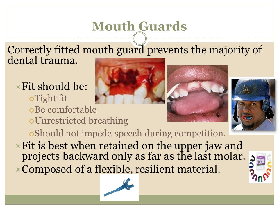 Mouth Guards Correctly fitted mouth guard prevents the majority of dental trauma. Fit should be: Tight fit.