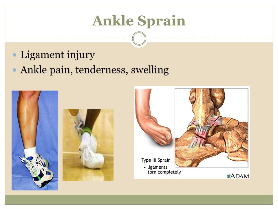 Ankle Sprain Ligament injury Ankle pain, tenderness, swelling