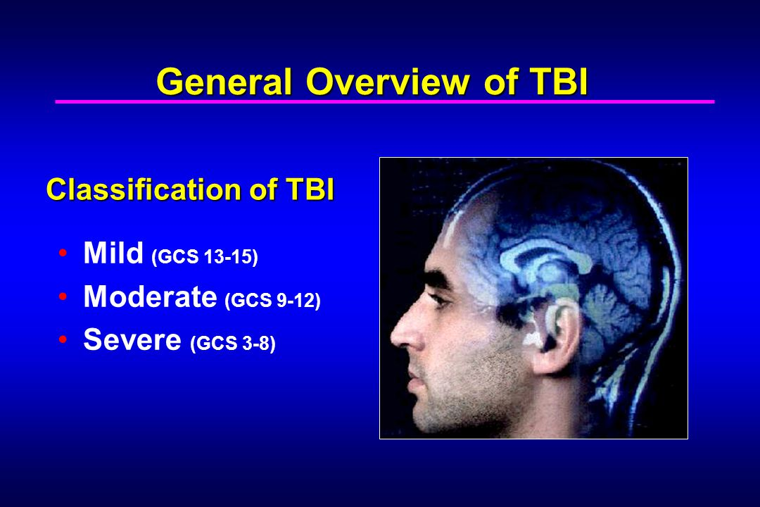 General Overview of TBI
