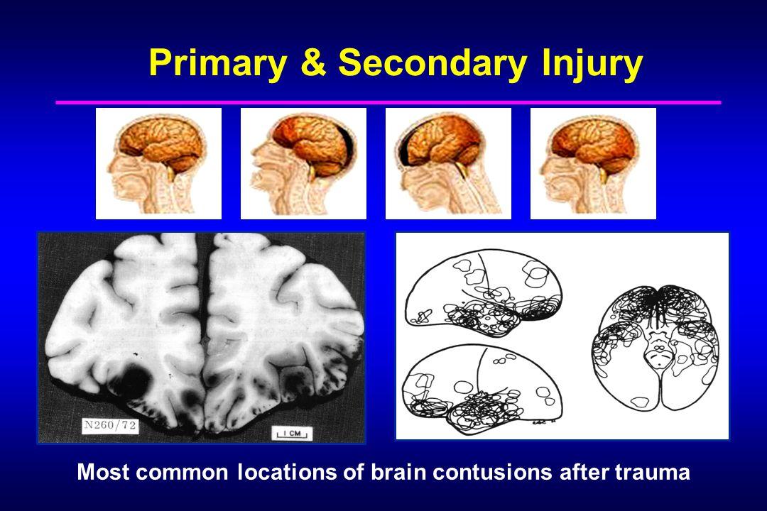 Primary & Secondary Injury