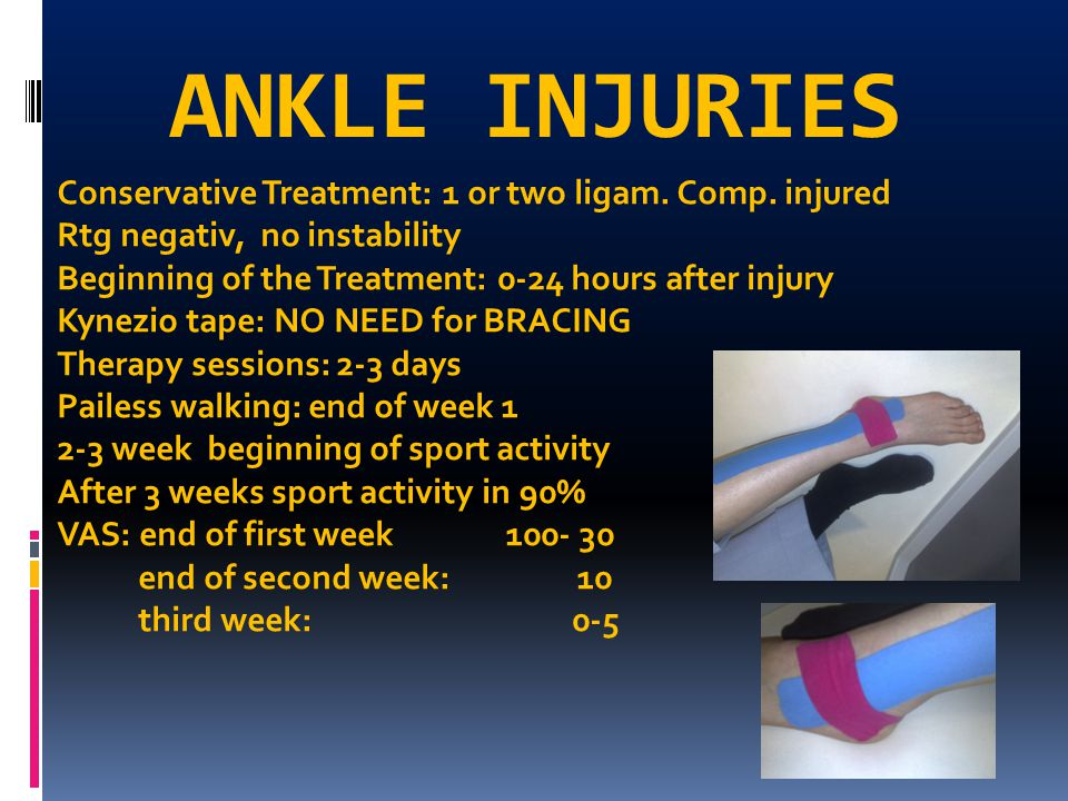 ANKLE INJURIES Conservative Treatment: 1 or two ligam. Comp. injured