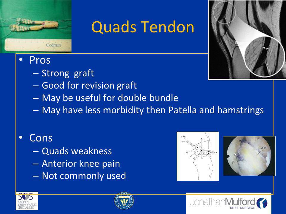 Quads Tendon Pros Cons Strong graft Good for revision graft
