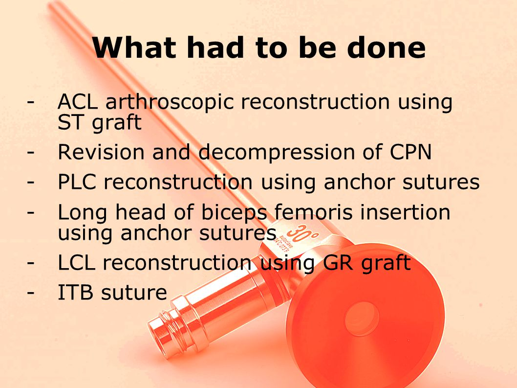 What had to be done ACL arthroscopic reconstruction using ST graft