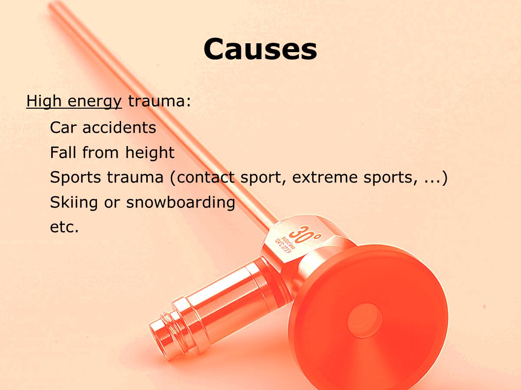 Causes High energy trauma: Car accidents Fall from height