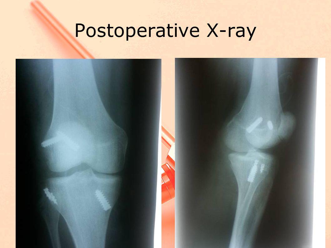 Postoperative X-ray
