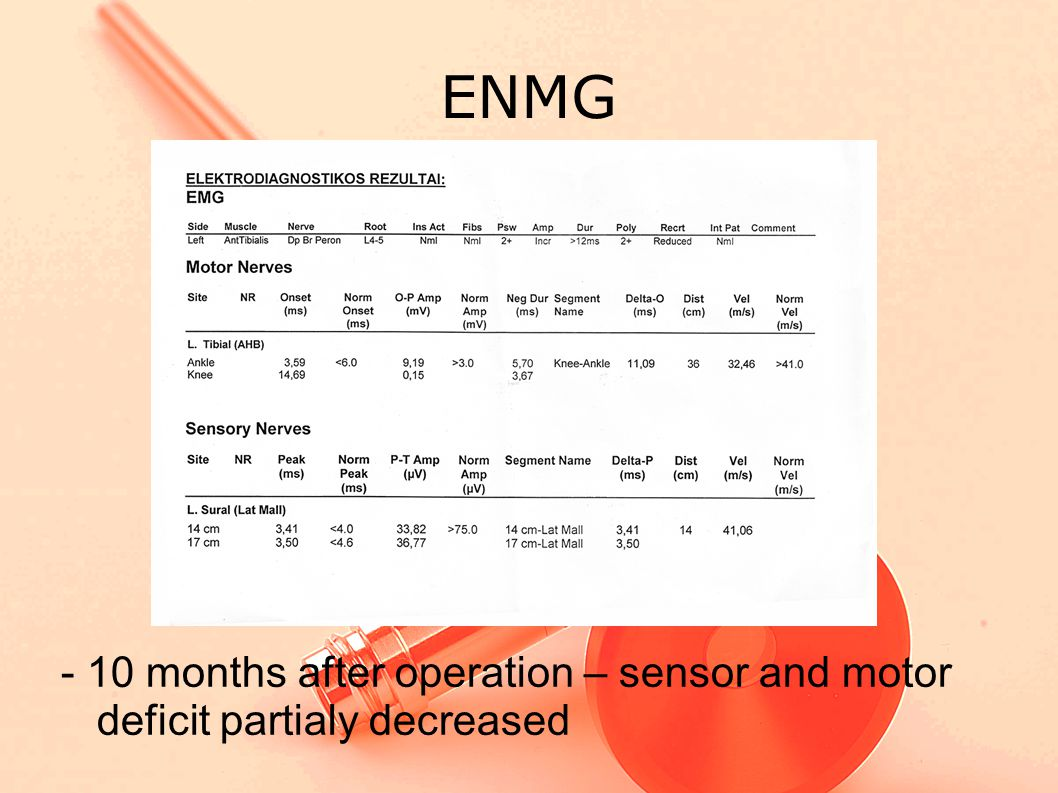 ENMG - 10 months after operation – sensor and motor deficit partialy decreased