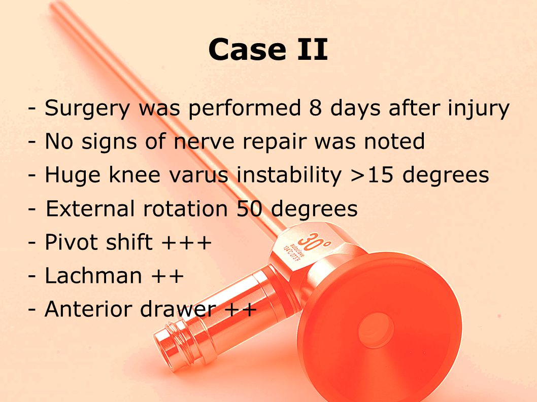 Case II - Surgery was performed 8 days after injury
