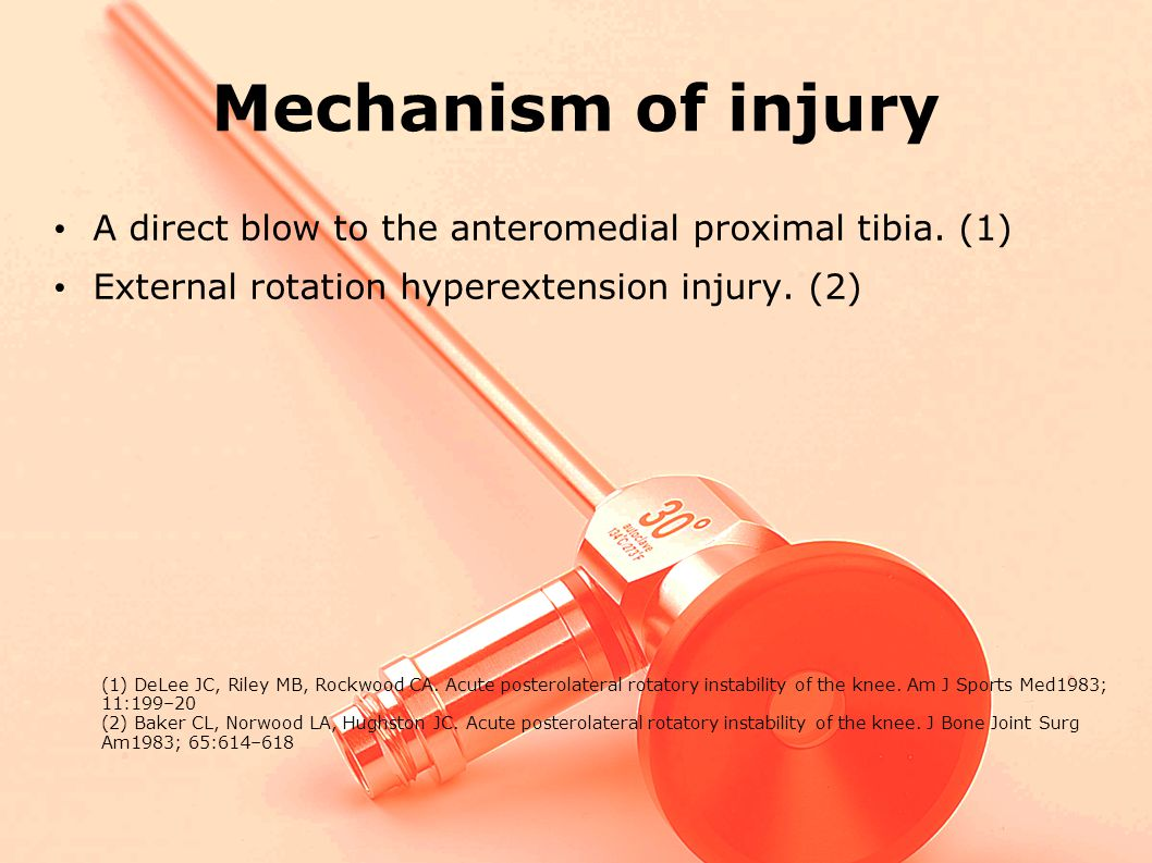 to be most common - either a direct blow to the anteromedial prox. Mechanism of injury. A direct blow to the anteromedial proximal tibia. (1)