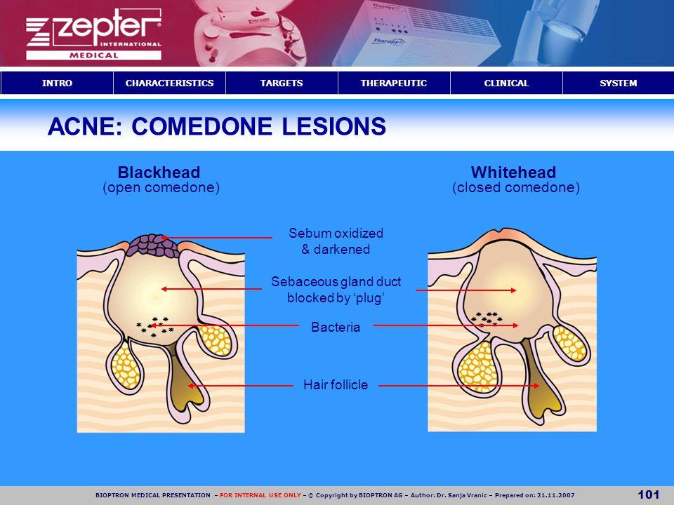 ACNE: COMEDONE LESIONS