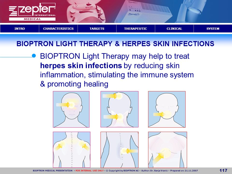 BIOPTRON LIGHT THERAPY & HERPES SKIN INFECTIONS