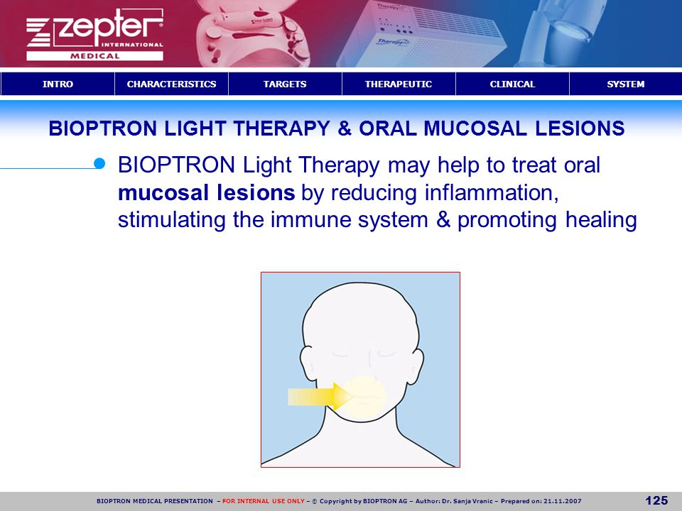 BIOPTRON LIGHT THERAPY & ORAL MUCOSAL LESIONS