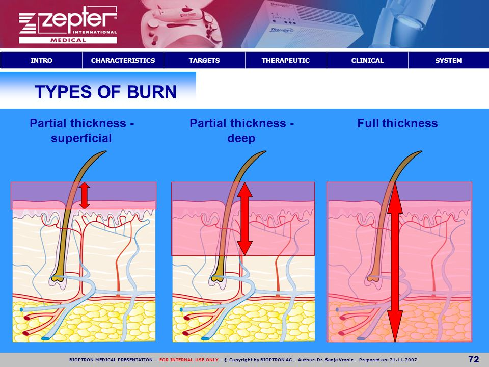Partial thickness - superficial Partial thickness - deep
