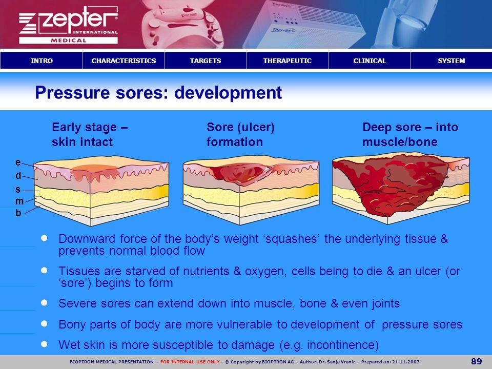 Pressure sores: development