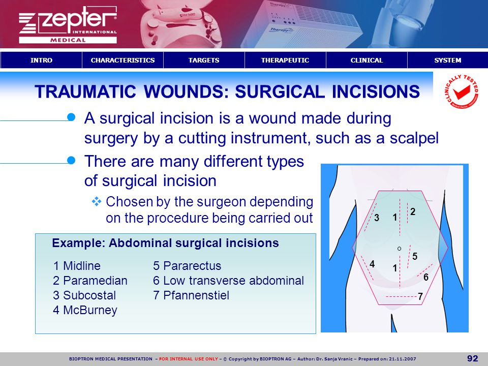 TRAUMATIC WOUNDS: SURGICAL INCISIONS