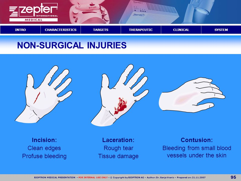 NON-SURGICAL INJURIES