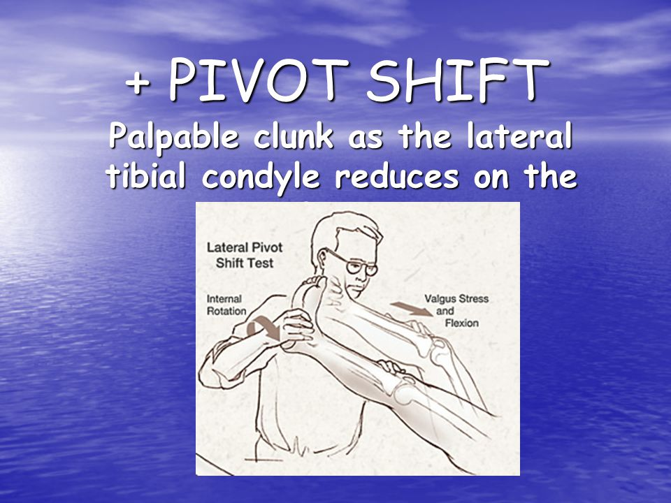 Palpable clunk as the lateral tibial condyle reduces on the femur