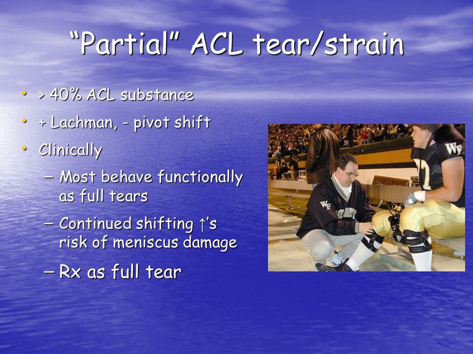 Partial ACL tear/strain