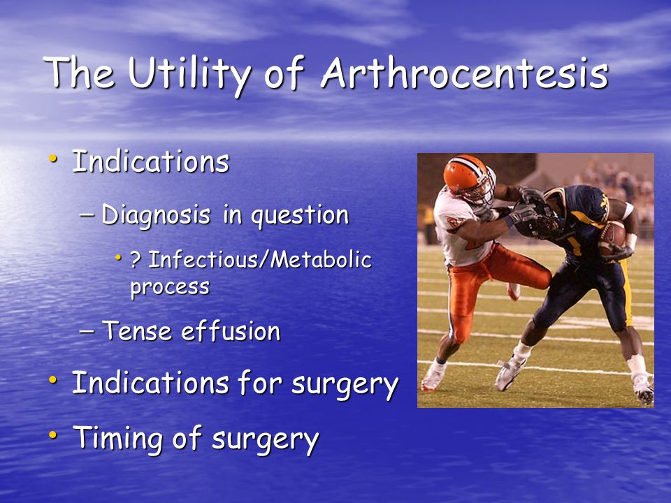 The Utility of Arthrocentesis