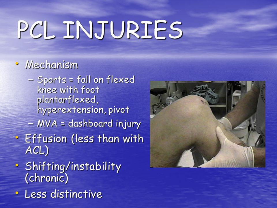 PCL INJURIES Mechanism Effusion (less than with ACL)